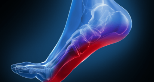 Relationship Between Foot Pain and Spinal Issues