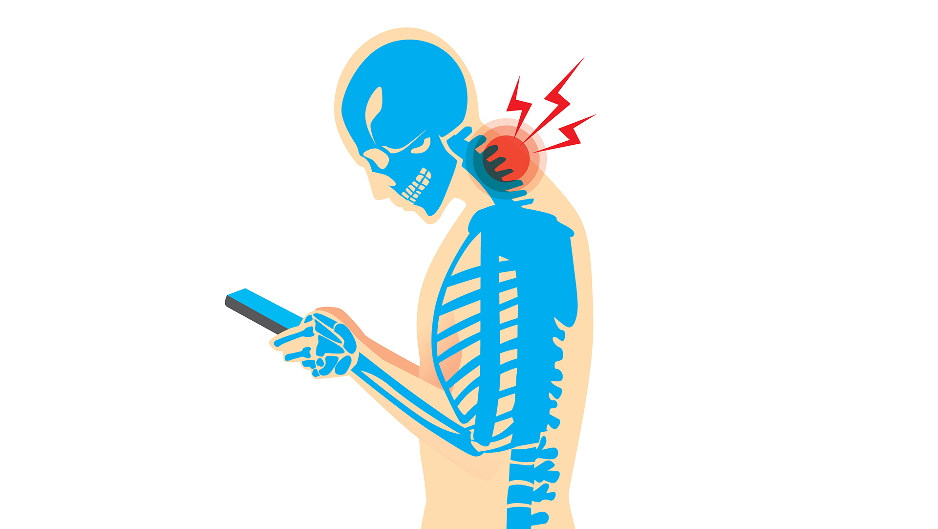 What Is Text Neck and How Is It Treated? - Goodyear Chiropractic Health  Center