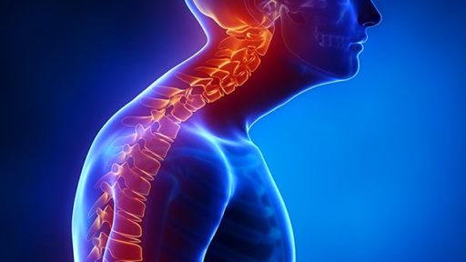 Tips to Improve Poor Posture